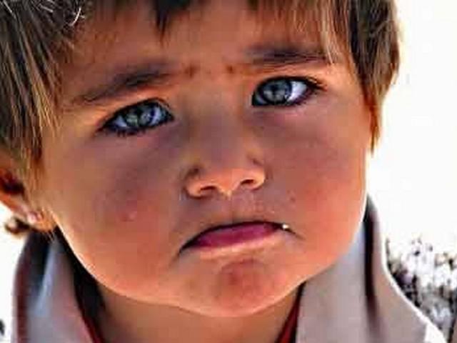 Alerjik Çocuklar Dondurmaya Dikkat Etmeli
